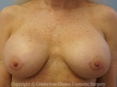 After-1 RevisionalBreastSurgery10