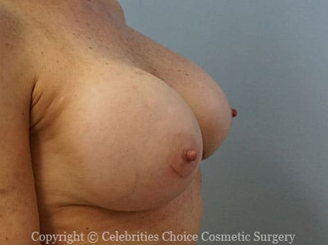 After-2 RevisionalBreastSurgery10