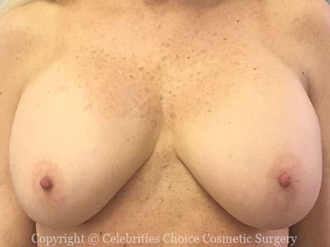 Before-1 RevisionalBreastSurgery10