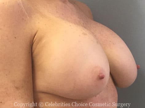 Before-2 RevisionalBreastSurgery10