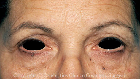 Before-Blepharoplasty10