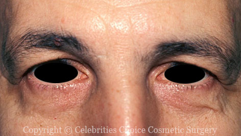 Before-Blepharoplasty11