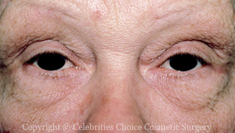 Before-Blepharoplasty12