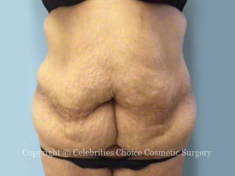 Before-tummytuck12