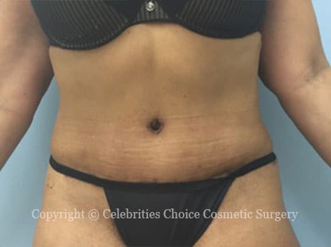 After-tummytuck13