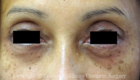After-Blepharoplasty13