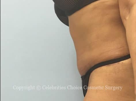 After-tummytuck13 b