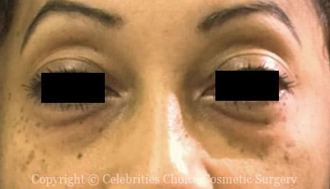 Before-Blepharoplasty13
