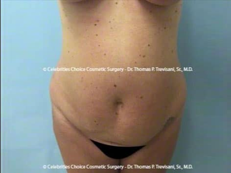 Before-tummytuck14