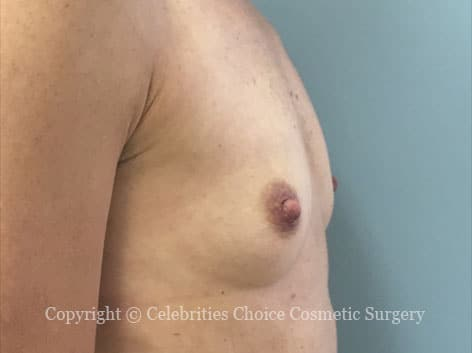 Before-augmentation15