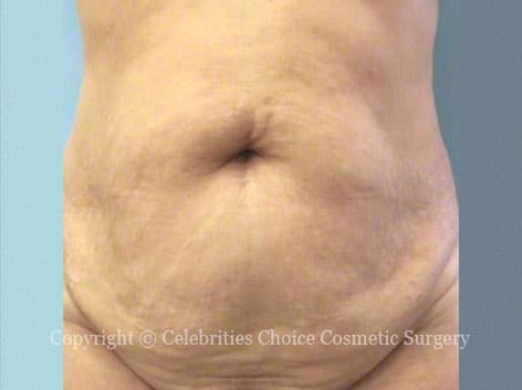 Before-tummytuck15