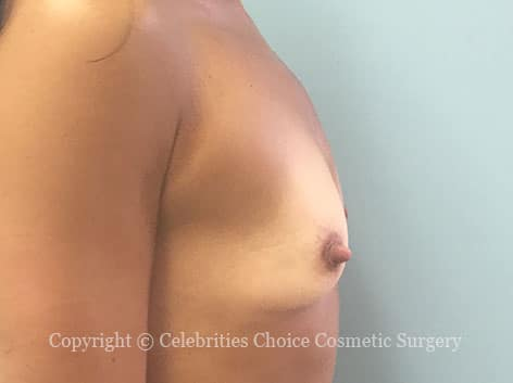Before-augmentation16