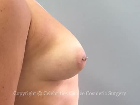 Before-augmentation17