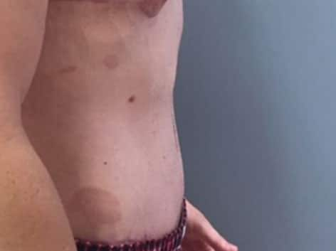 After-tummytuck18 b