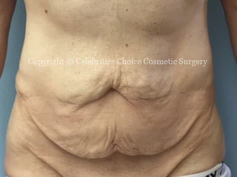 Before-tummytuck18