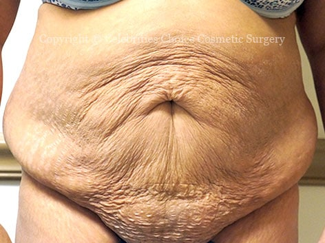 Before-tummytuck19