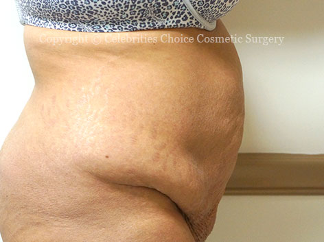 Before-tummytuck19 b