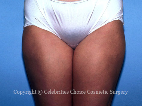 After-Liposuction1
