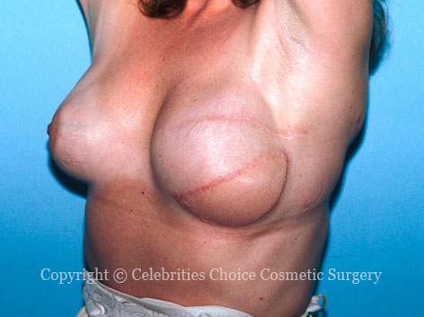 After-BreastReconstruction1