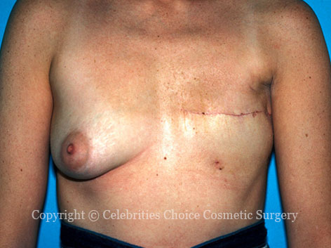 Before-BreastReconstruction1b