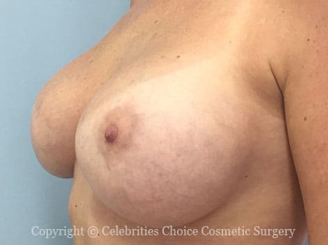 After-augmentation20 b