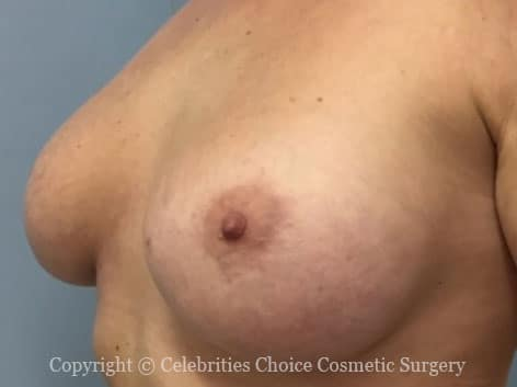 Before-augmentation20 b