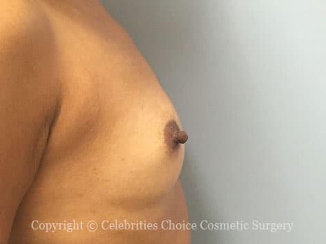 Before-augmentation22