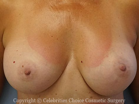 After-RevisionalBreastSurgery9