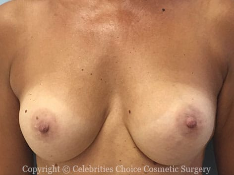 Before-RevisionalBreastSurgery9
