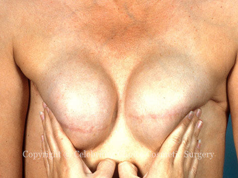 After-BreastReconstruction2