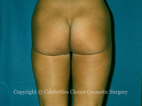 After-Liposuction2