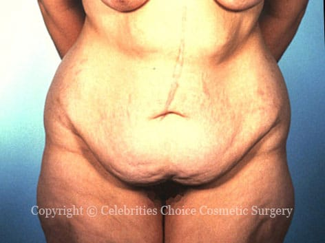 Before-tummytuck2