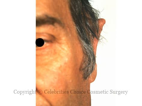 After-otoplasty3