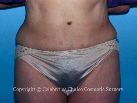 After-tummytuck3
