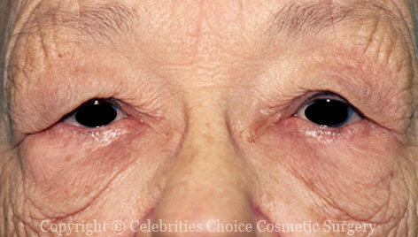 Before-Blepharoplasty3