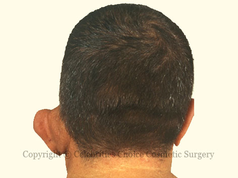 Before-otoplasty3 2