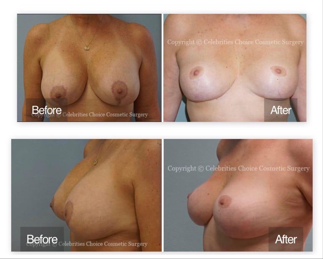 breast revision orlando