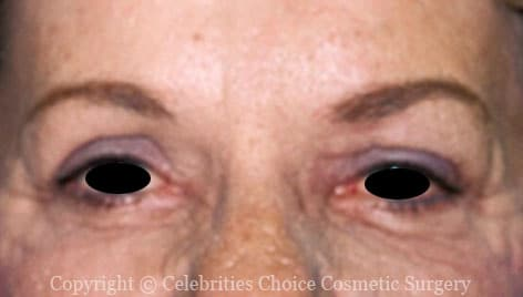 After-Blepharoplasty4