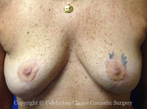 After-BreastReconstruction4