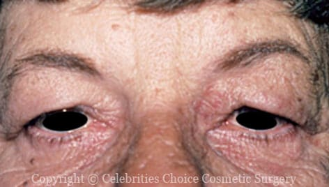 Before-Blepharoplasty4
