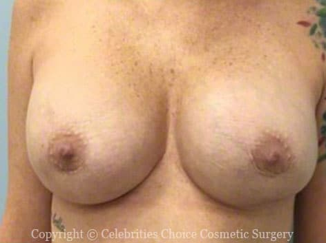 After-RevisionalBreastSurgery5