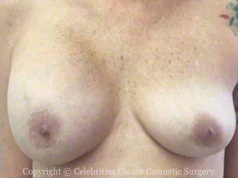 Before-RevisionalBreastSurgery5