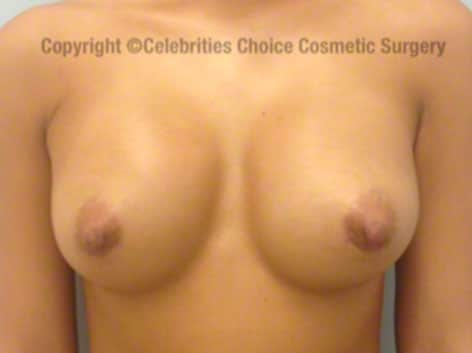 After-RevisionalBreastSurgery6