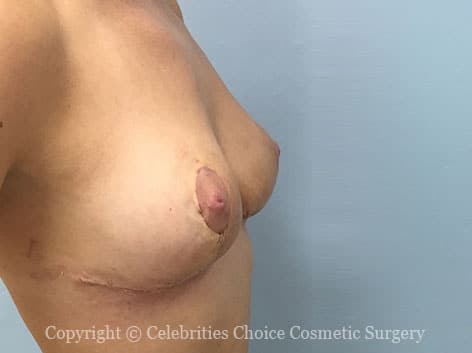 After-BreastReconstruction6
