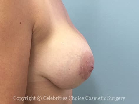 Before-BreastReconstruction6