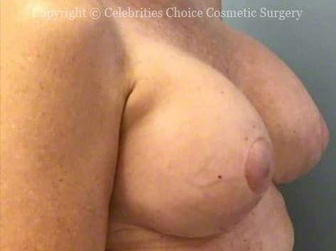 After-RevisionalBreastSurgery7