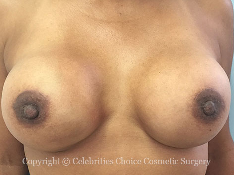 After-RevisionalBreastSurgery8 b
