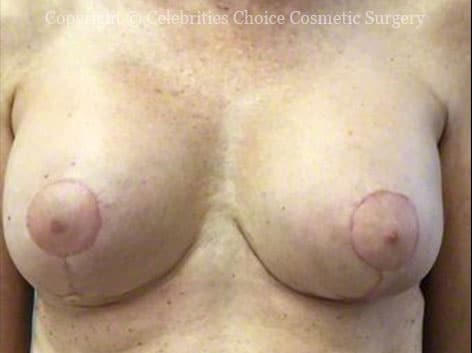 After-RevisionalBreastSurgery7 b