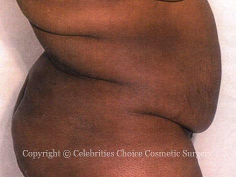 Before-tummytuck7