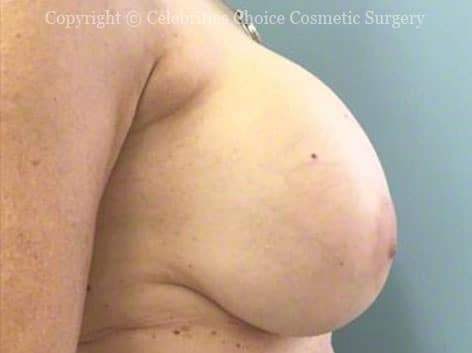 Before-RevisionalBreastSurgery7
